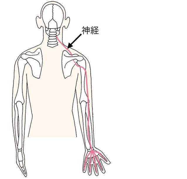 画像: 中に手へ向かう神経があるため、頸椎が圧迫されると、手の痛みが生じる