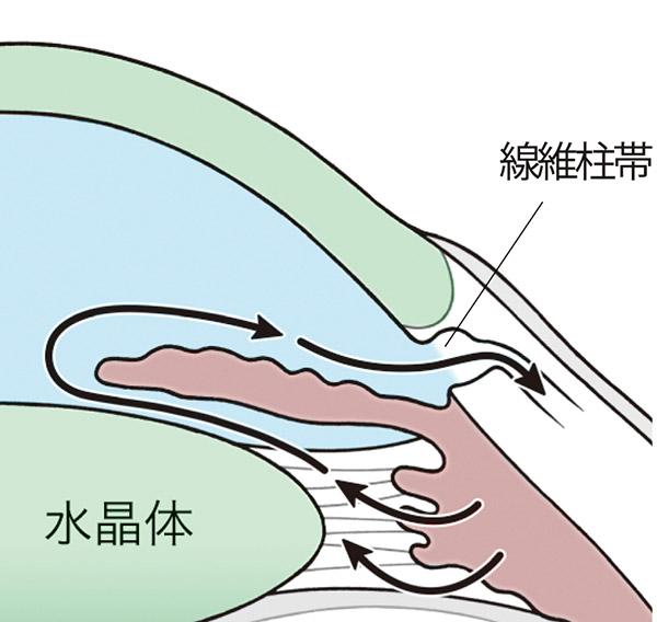 画像: トラベクトームは「MIGS」の一種。線維柱帯を電気メスで切開し、房水の流れをよくする。出血が少なく、日帰り手術が可能。眼圧の下げ幅は中程度。