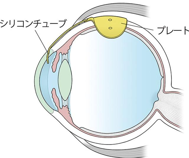 画像: シリコンチューブと、眼球の外側の眼筋の間に取り付けるプレートから成り、目の中に挿入したチューブを通して房水を眼球の外に出すことで眼圧を下げる。
