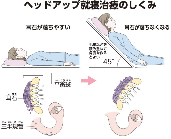 画像: 45度の角度で寝れば耳石がこぼれない