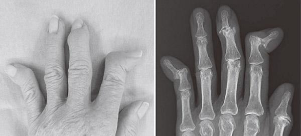 画像: ヘバーデン結節とそのレントゲン写真。人さし指、中指、小指の第一関節が変形している。