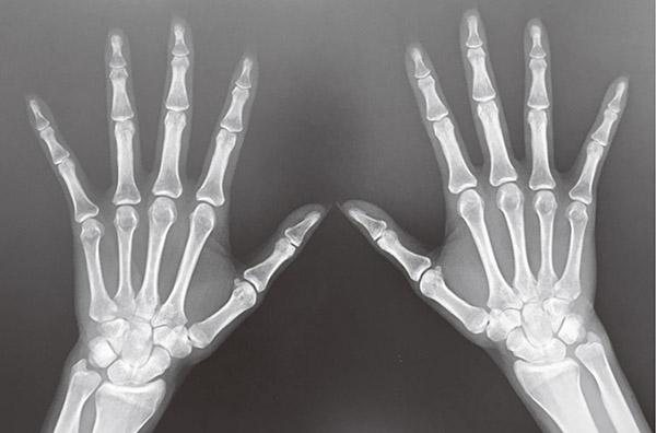 画像: 金子さんの手のレントゲン写真。現在まで変形は防げている。