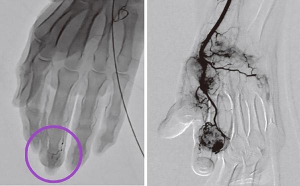 画像: 指の痛みがある人にできているモヤモヤ血管(黒く映っているのが血管)