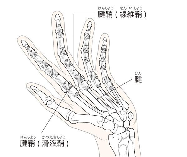 画像: 腱が縮んで関節の隙間がなくなると軟骨が摩耗する。