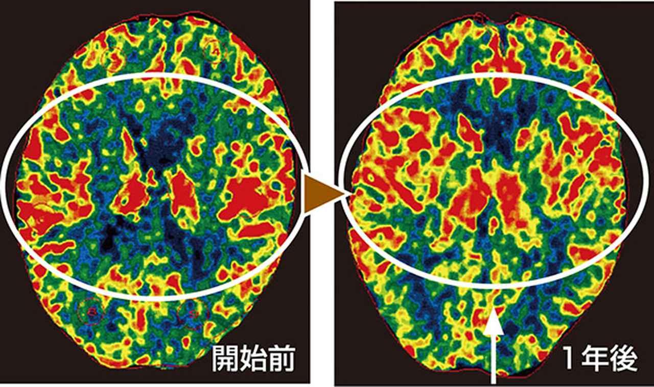 画像: 左右と中心部の色が明るいところの血流が上がっている。