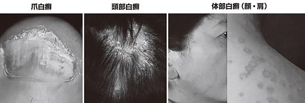 画像: 症例画像提供/福田知雄先生