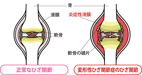 画像: 痛みは軟骨ではなく、滑膜の炎症によるもの