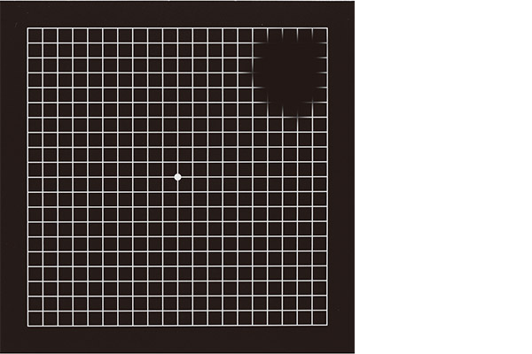 画像: アムスラーチャート(格子状の表)によるチェック。緑内障はマス目の一部が欠けたり、ぼやけたりして見える。
