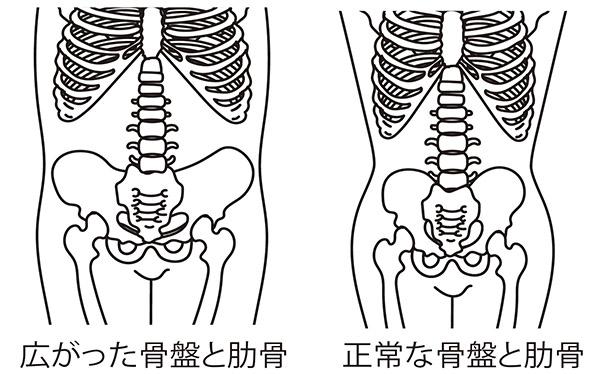 画像: 悪い姿勢で骨のつなぎ目がゆるみ骨格がゆがむ