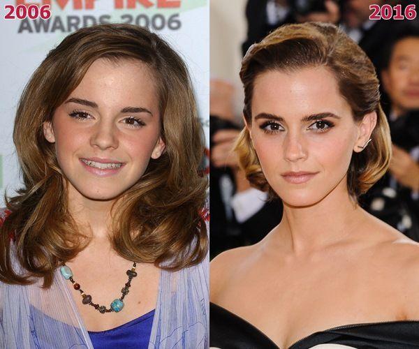映画『ハリー・ポッター』シリーズ5作目を撮影中だった2006年は16歳だったにもかかわらず、まだ幼さがあったエマ。現在26歳で、すっかり大人に。